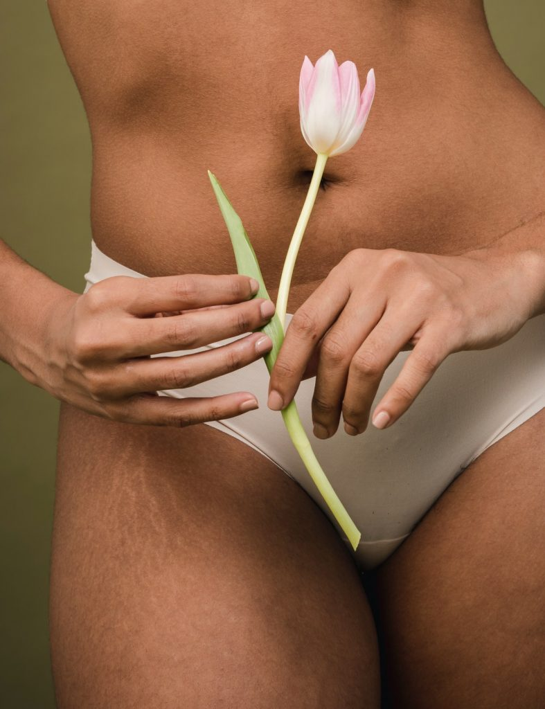 Mujer  piel natural, mujer con estrías. ¿Amas tus estrías?